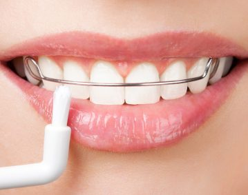 stomatoloska ordinacija dr mecava banja luka zubar zubari